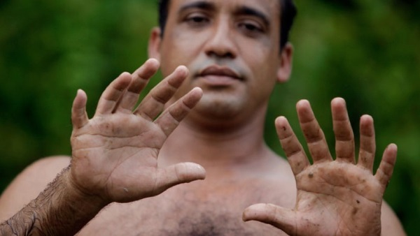 20-of-the-weirdest-and-rarest-diseases-known-to-mankind-10