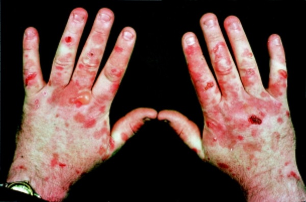 20-of-the-weirdest-and-rarest-diseases-known-to-mankind-14