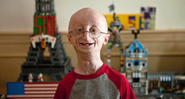 20-of-the-weirdest-and-rarest-diseases-known-to-mankind-16