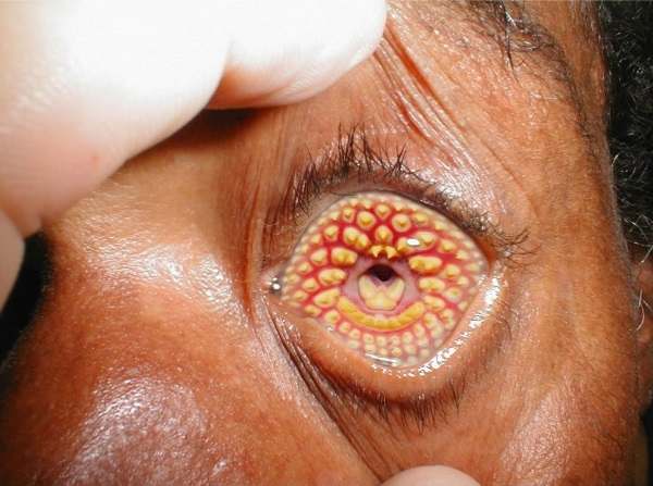 20-of-the-weirdest-and-rarest-diseases-known-to-mankind-20 (1)