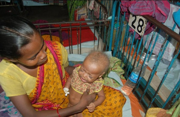 20-of-the-weirdest-and-rarest-diseases-known-to-mankind-4