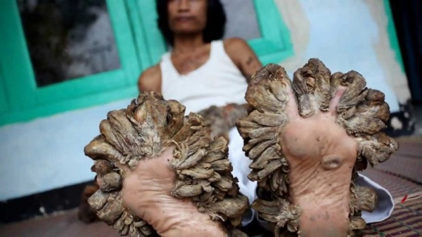 20-of-the-weirdest-and-rarest-diseases-known-to-mankind-8