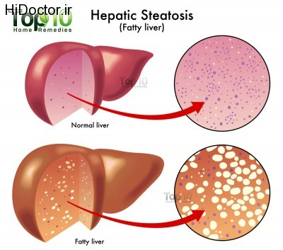 Hepatic-Steatosis