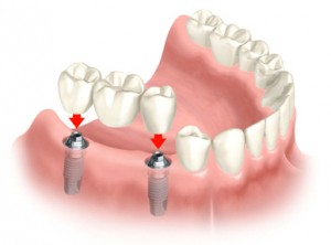 multiple_teeth_implants